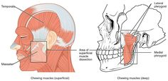 Whats Causing Your Jaw Pain? All In One Dental Innovations 7046 Dublin Blvd Dublin CA 94568 (925) 828-9811