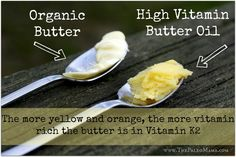 Click here to read how BUTTER helps heal cavities: http://thepaleomama.com/2013/11/how-im-healing-cavities-without-dentistry/