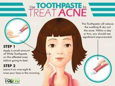 toothpaste to treat acne