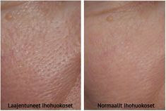 Suurentuneet ihohuokoset on hyvin yleinen ilmiö, ja monet yrittävät peittää niitä meikillä. Mutta mikset supistaisi ihohuokosia luonnollisin keinoin?