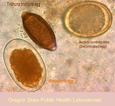 Oregon Health Authority : Parasite Images from the Oregon State Public Health Laboratory : Parasite Images Library : State of Oregon Medizinisches Labor, Medical Lab Technician, Medical Laboratory Scientist, Med Lab, Medicine Notes, Macro And Micro, Veterinary Medicine, Medical Technology, Oregon