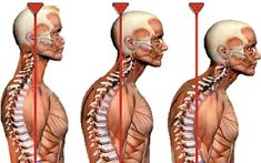 Text Neck describes headaches, neck pain and shoulder pain from frequent texting. At Baker Chiropractic we help patients escape the pain from text neck. Fitness Workouts, Fitness Diet, Health Fitness, Posture Fix, Bad Posture, Better Posture, Posture Help, Neck And Back Pain, Neck Pain