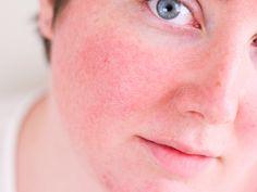 Entenda tudo sobre sua pele vermelhinha ❤