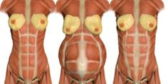 How to heal and correct Diastasis Recti.