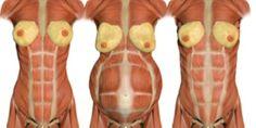 How to heal and correct Diastasis Recti.