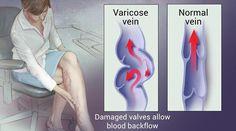 immator varicose suc de la varicosaza