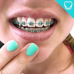 94 Best Hello Smiles On Instagram Images Dental Teeth Tooth