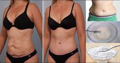 It's easy to gain weight but shedding that extra layer takes much more than exercise. Baking soda present in almost all households can actually help you lose weight! Yes, baking soda can help you get rid of fat, it can also treat heartburn, cure upset stomach, and neutralize excess stomach acid. Baking soda is easily available and …