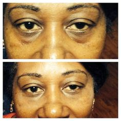 Instantly Ageless...watch my 2 minute video - you will be AMAZED! http://2minuteskinmiracle.com/CP4-phone/?u=1900