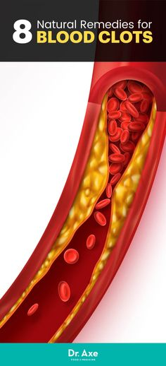 Blood Clots: Causes & Symptoms + 8 Natural Remedies