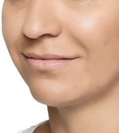 Restylane Lyft, formerly known as Perlane-L®, is an injectable hyaluronic acid gel used to correct volume loss and treat wrinkles in the face!