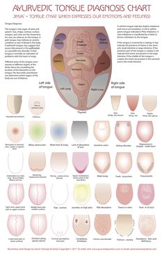 Ayurvedic Tongue chart, laminated, describes ayurvedic pathologies mirrored on the tongue. The tongue is one of the main organs used in diagnosis in Ayurveda, health problems reflect in it. Ayurvedic Healing, Ayurvedic Medicine, Natural Medicine, Alternative Health, Alternative Medicine, Acupuncture, Natural Cures, Natural Health, Ayurveda Dosha