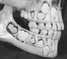 Dentadura de un niño antes de perder los dientes de leche.De faltar alguno de estos dientes o molares se consideraria un caso de ANODONCIA!