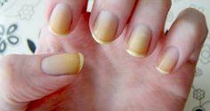 How do I Get Rid of Yellow Fingernails