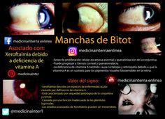 #Manchas de #Bitot