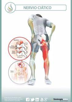 9 Ideas De Síndrome Puramidal Musculo Piramidal Dolor De Ciatica Nervio Ciatico