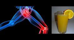 Wielu z nas cierpi na nieustające bóle stawów, często stosujemy leki przeciwbólowe aby pozbyć się problemu. Warto wiedzieć, że to działanie doraźnie. W tym artykule przedstawiamy Państwu naturalne lekarstwo na ból stawów, który poza mocą leczniczą jest też bardzo smaczny. Oto przepis na naturalny sok, który sprawnie usuwa kwas moczowy z organizmu oraz pomaga zlikwidować bóle stawów.    Oto czego potrzebujesz: -1 szklanka pociętych ananasów -1 grejpfrut  -1 ogórek  -kawałek imbiru,  - 500 ml…