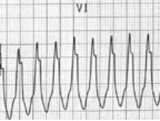 Taller left rabbit ear in VT Ekg Interpretation, Emergency Medicine, Critical Care, Good To Know, Ems, Rabbit, Knowledge, Medical, Life