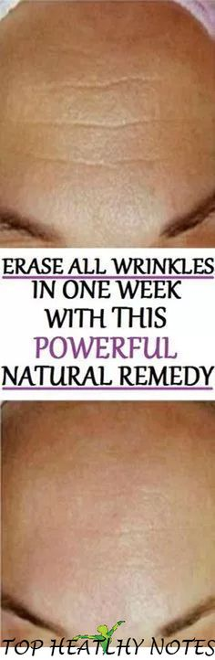 Natural Remedy That Eliminates All Wrinkles in One Week! Powerful Natural Remedy That Eliminates All Wrinkles in One Week! Powerful Natural Remedy That Eliminates All Wrinkles in One Week! Beauty Care, Diy Beauty, Beauty Skin, Health And Beauty, Beauty Hacks, Beauty Box, Beauty Makeup, Juice Beauty, Piel Natural