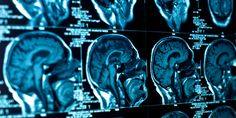 Want A Healthy Brain? Better Avoid These 7 Habits