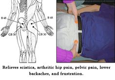 Acupuncture Pain Relief Key Acupressure Points for Hip Lower Back Pain and Sciatica Middle Back Pain, Upper Back Pain, Low Back Pain, Prenatal Massage, Acupuncture Benefits, Back Pain Remedies, Reflexology Massage, Foot Massage, Back Pain Exercises