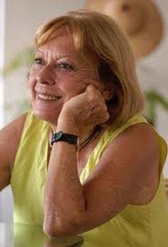 Lygia Bojunga Nunes - autor 1982 Hans Christian, Memories, Books, Literatura, Astrid Lindgren, Memoirs, Souvenirs, Libros, Book
