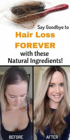 hair loss prevention female natural remedy, All-natural remedies to stop hair loss as well as promote hair growth - Top Trends Argan Oil For Hair Loss, Best Hair Loss Shampoo, Biotin For Hair Loss, Biotin Hair, Hair Shampoo, Vitamins For Hair Loss, Aveda Hair, Loreal Hair, Dry Shampoo