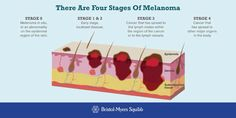 Four Stages of Melanoma