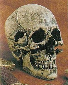 Skull found in a mass grave at battle of Towton in England. Wounds on the skull are a testament to the ferocity and barbarity of the battle. Note the massive cut wound from sword or axe above this chap's upper lip. Military Art, Military History, Australian Aboriginals, Unusual Facts, Sword Fight, Wars Of The Roses, Medieval Manuscript, Viking Age, Interesting History