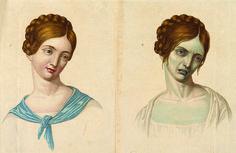 ¿Sabrías unir estas ilustraciones de estilo vintage con la enfermedad que representan?