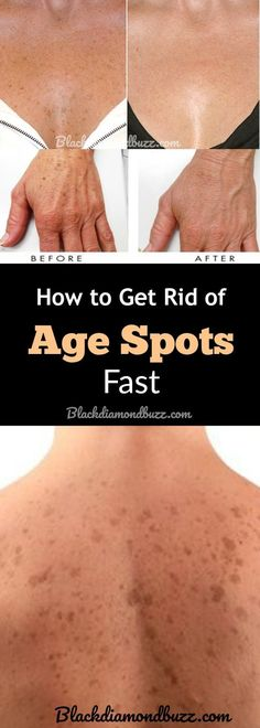 DIY Age Spots Removal Cream- How to Get Rid of Age Spots,Brown Spots and Liver Spots on face , chest, arms and back Overnight. Active ingredients - apple cider vinegar, essential oils and hydrogen peroxide #EczemaEssentialOils