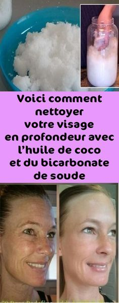 Make The Wrinkles Disappear With This Homemade 3 Ingredient Face Cream - Do it Smart Face Care, Skin Care, Thyme Essential Oil, Friends Show, Hair Shampoo, Baking Soda, Coconut Oil, Voici, Cardiovascular Disease