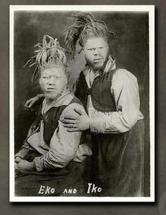 The MUSE BROTHERS- Born in the 1890's the pair were scouted by sideshow agents and kidnapped in 1899 by bounty hunters working in the employ of an unknown sideshow promoter. Black albinos, being extremely rare, would have been an extremely lucrative attraction. George Muse died in 1971, but Willie lived until 2001 and died at the age of 108.