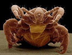 crab louse