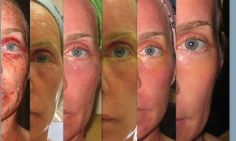 "healing process after receiving Fraxel laser treatment. My mom would say ""Suffer for beauty.""The healing process after receiving Fraxel laser treatment. My mom would say ""Suffer for beauty. Scar Treatment, Anti Aging Treatments, Skin Care Treatments, Co2 Laser Resurfacing, Skin Resurfacing, Fractional Laser, Facial Scars"