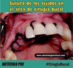 CIRUGÍA BUCAL: Sutura de los tejidos en el área de cirugía bucal: Revisión de la literatura | Ovi Dental