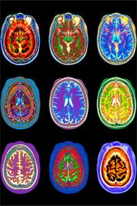 MRI Brian in Color