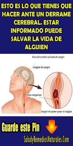 Esto es lo que tienes que hacer ante un derrame cerebral. Estar informado puede salvar la vida de alguien. #salud