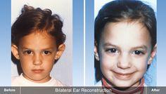 Bilateral Ear Reconstruction