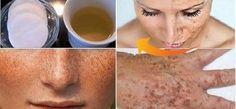 Doğal yöntem ile cildinizi birkaç dakika içinde lekelerden arındırıp temizleyin! Cilt insanoğlu için büyük önem taşır. Ona her zaman özen göstermeliyiz. Bununla birlikte, herkes için