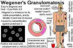 Cartoon Graphic by Ed Friedlander, M.D., Pathologist, Wegener's Granulomatosis