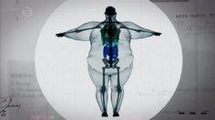 Röntgenaufnahme eines 450 Kilo schweren Mannes