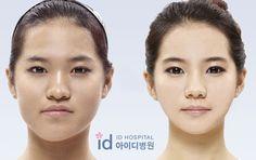 KOREAN-PLASTIC-SURGERY
