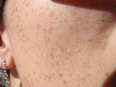 Vous avez des taches brunes sur la peau dues à des expositions solaires, des questions génétiques, des problèmes hépatiques, une grossesse, un traitement à base d'antibiotiques, etc ? Voilà une routine à appliquer afin de retrouver une jolie peau sans imperfection et effacer ou les atténuer ces taches brunes sur la peau !