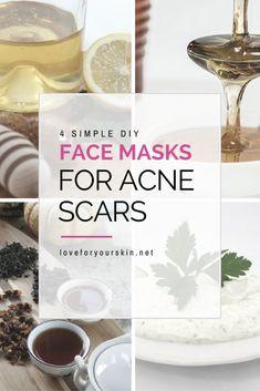 4 DIY Face Masks for Acne Scars