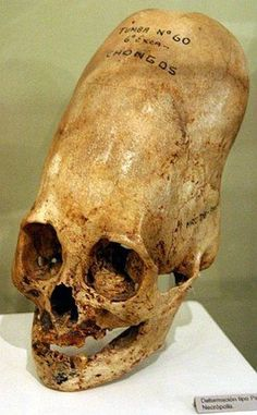 in the ussr artificially deformed skulls are known from ancient tombs ...