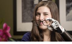 The world's most advanced Prosthetic Hand - bebionic