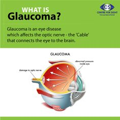 Glaucoma is a condition that is often associated with a buildup of pressure inside the eye. Glaucoma can be inherited and may not show up until later in life after tangible vision loss. Schedule an eye check if you face Glaucoma symptoms. Glaucoma Symptoms, Health Articles, Health Tips, Eye Illustration, Illustrations, Eye Anatomy, Eye Facts, Eye Damage, Vision Eye