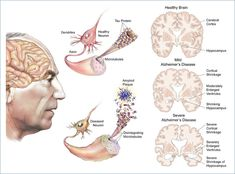Entre as doenças que afetam o cérebro, o mal de Alzheimer é uma das mais cruéis. Ela se instala lentamente e mina a capacidade do indivíduo de se relacionar com o mundo exterior e consigo me…