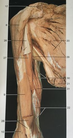 Ventral aspect muscles of right arm after removing biceps brachii deltoid, brachialis, triceps brachii, radialis, (this muscle see after removing some muscles like pectoralis) Muscle Anatomy, Body Anatomy, Human Anatomy, Gross Anatomy, Muscular System, Medical Anatomy, Muscle Body, Medical Art, Anatomy Tutorial